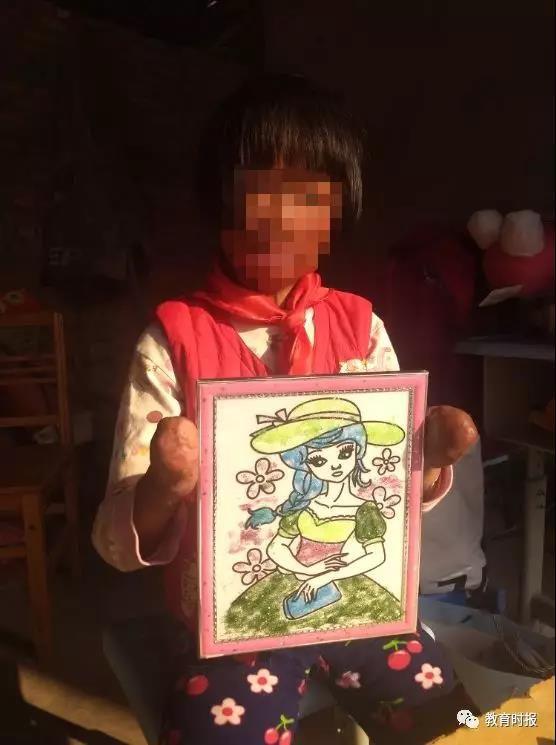 河南一女孩烧伤致残 16位老师走教为她上课